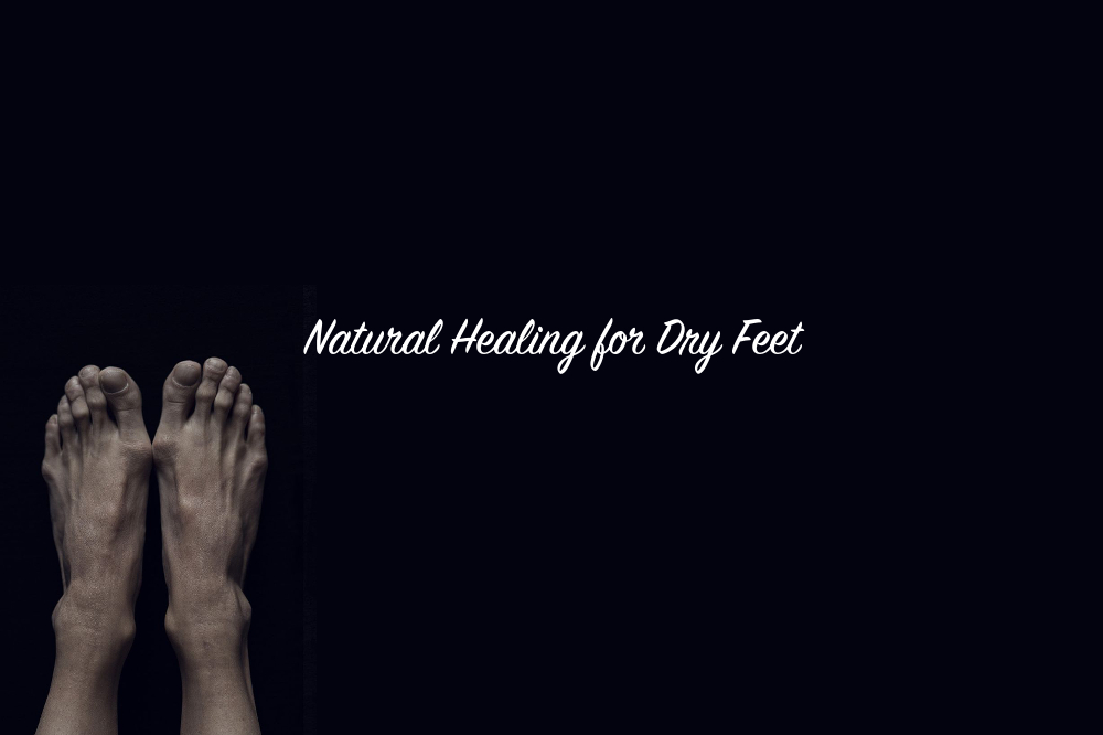 Natural Healing for Dry Feet